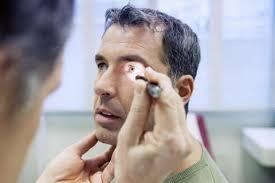 Miastenia gravis en el ojo