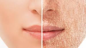 Diferencia entre piel seca y piel deshidratada