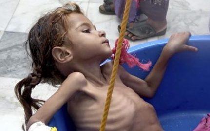 Yemen: el país donde cada diez minutos muere un niño