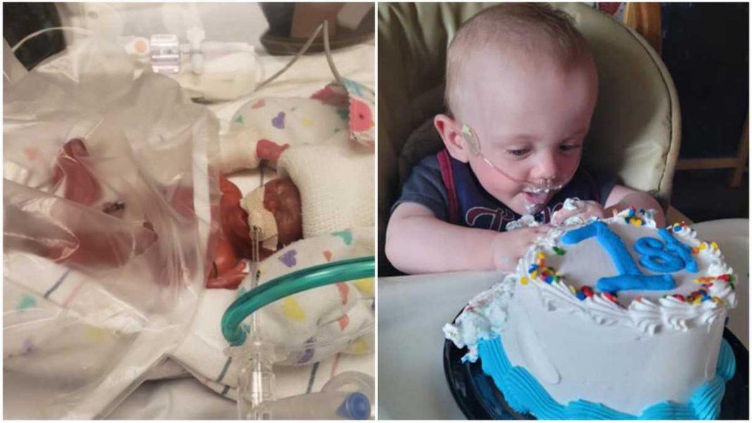 El bebé más prematuro del mundo cumple su primer año de vida